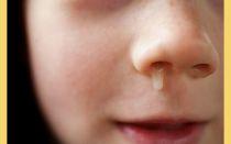 Симптомы и лечение гайморита у детей 4 — 8 лет