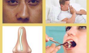 Симптомы и Лечения Верхнечелюстного синусита