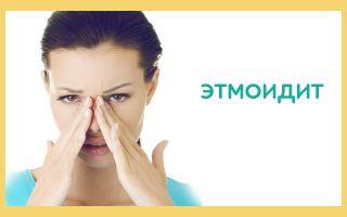 Этмоидит у взрослых, симптомы, лечение и профилактика