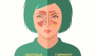 Симптомы и лечение гайморита в домашних условиях у взрослых