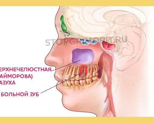 Причины одонтогенного гайморита — описание и лечение заболевания