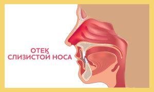 Причины и симптомы отека слизистой носа