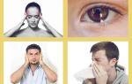 Ринит у взрослых — симптомы заболевания и правильное лечение.