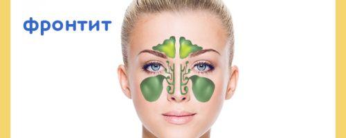 Симптомы фронтита у взрослых — лечение и диагностика