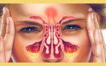 Лечение головной боли при гайморите — причины возникновения