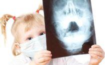 Симптомы, лечение и профилактика гайморита у детей