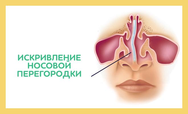 кривая перегородка носа