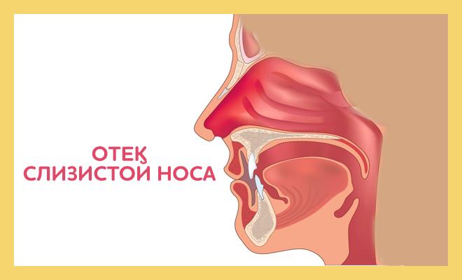 аллергия слизистая носа
