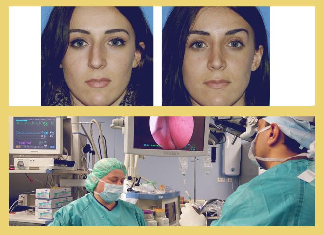 операция по выпрямлению носовой перегородки, до и после