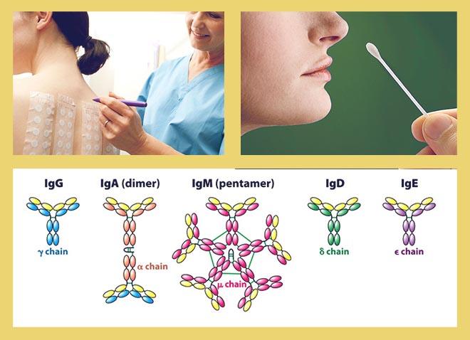 Анализ IgE, Мазок из носа, Аллергические кожные пробы