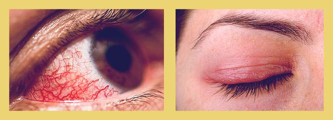 Конъюнктивит, припухлость глаз
