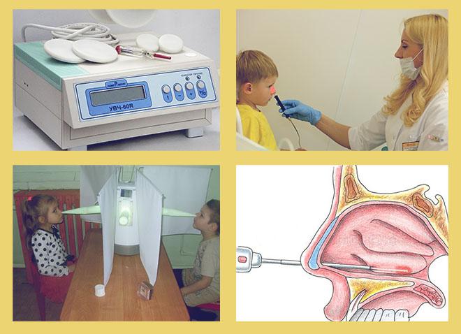 УВЧ, физиопроцедуры, лазеротерапия, прокол
