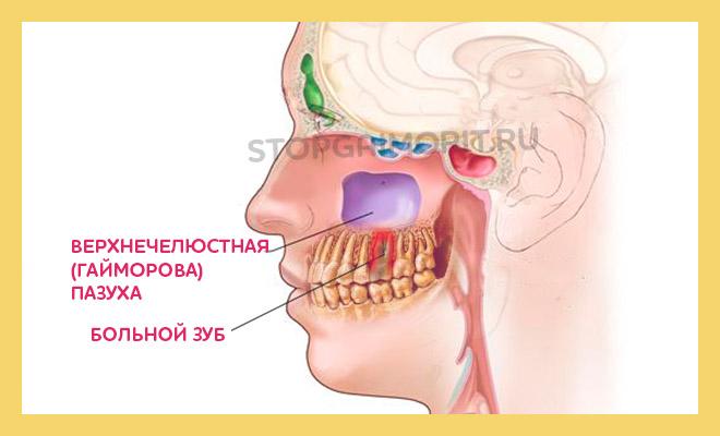 череп в разрезе