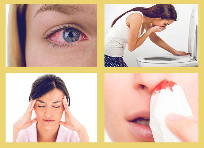 покраснение глаз, тошнота и рвота, головная боль, кровь из носа