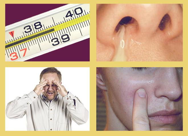 температура 38, выделения из носа, головная боль, боль при нажатии на щеку